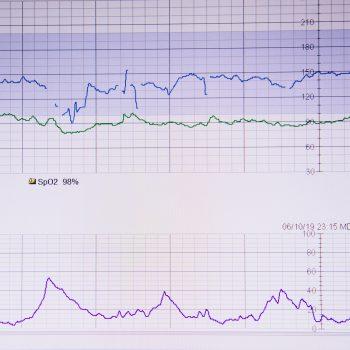 Badania kontrolne u kardiologa - jakie i kiedy zrobić